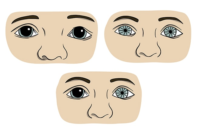 Pupil Condition After Head Trauma