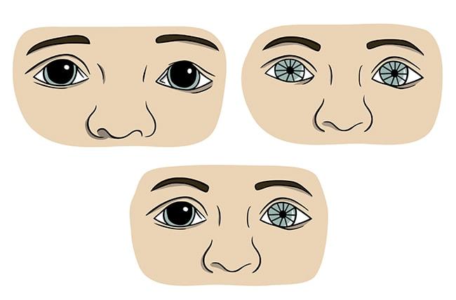 Estado de las pupilas tras un traumatismo de cráneo